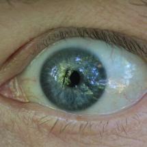 Auge_2