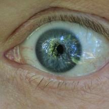 Auge_3
