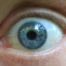 Auge_4