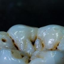 Molar1