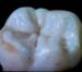 Molar 2